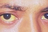 8 condizioni con cui gli occhi allertano sullo stato di salute.