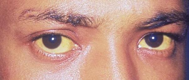 condizioni con cui gli occhi allertano sullo stato di salute