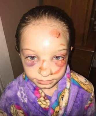 Questa bambina è stata picchiata da un bullo, ma la scuola lo ha definito un incidente.