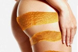 Tonificazione cosce e glutei | Allenamento anti cellulite.