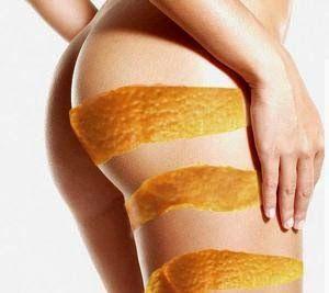Tonificazione cosce e glutei