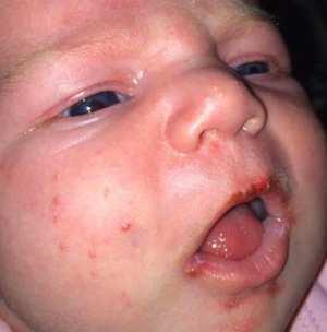 bambino quasi morto dopo un bacio