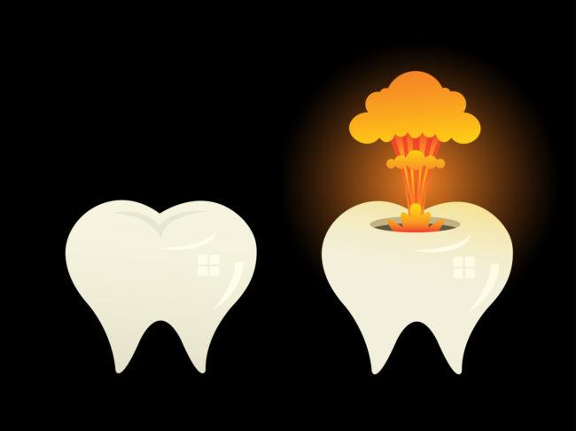 esplosione dei denti in bocca