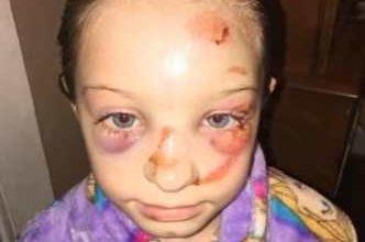 bambina picchiata da un bullo, ma la scuola lo ha definito un incidente